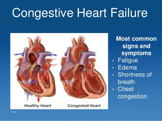 Case Study 3 Congestive Heart Failure Essay - 687 Words