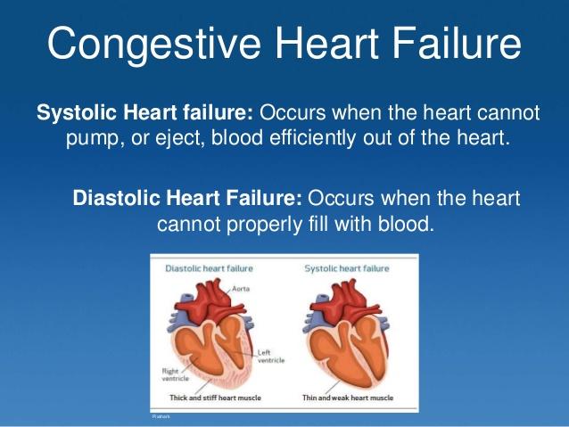 congestive heart failure case study presentation for nurses
