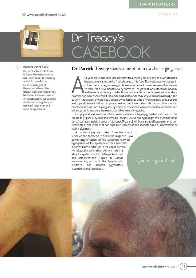 43 CASE FILESwww.aestheticmed.co.uk Aesthetic Medicine • April 2014 S K I N / D E R M AT O L O G Y A 51-year-old Indian ma...