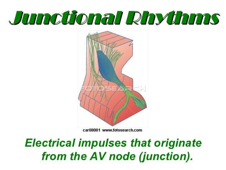 Junctional Rhythms <ul><li>Electrical impulses that originate from the AV node (junction). </li></ul>