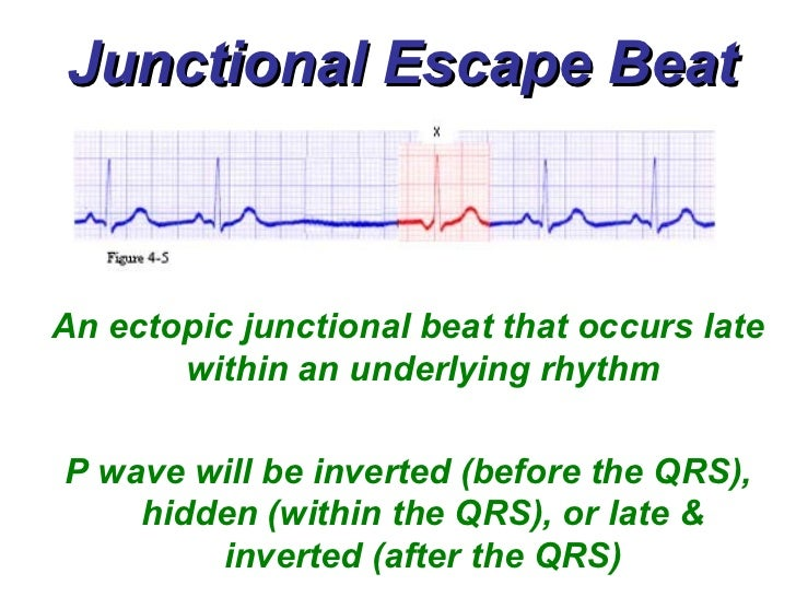 Junctional escape beat an ectopic junctional beat that occurs late