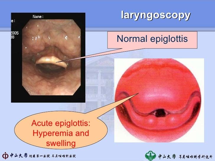 Image Gallery epiglottis inflammation