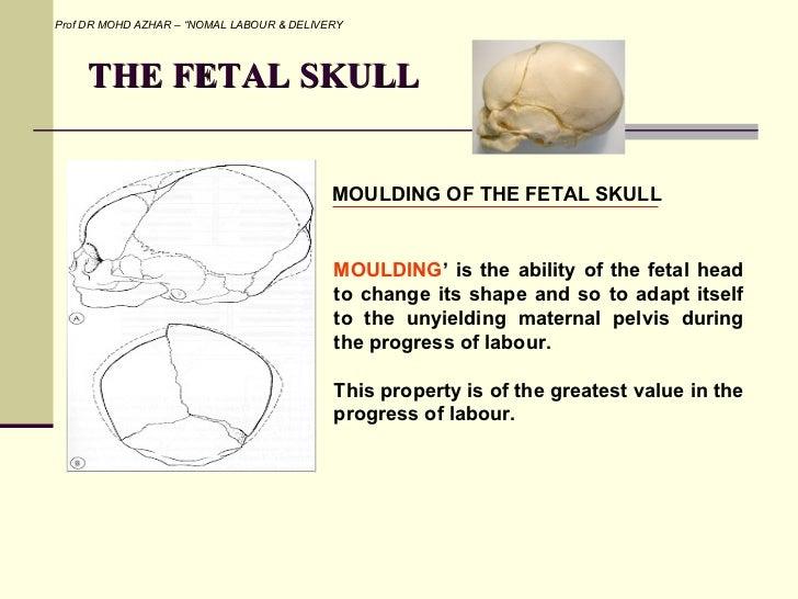Fetal Skull Moulding The Fetal Skull Prof dr Mohd