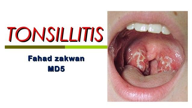 5. tonsillitis