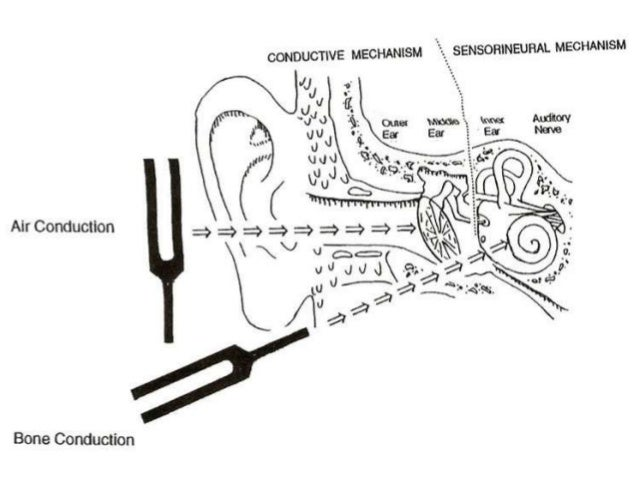 mastoid ear