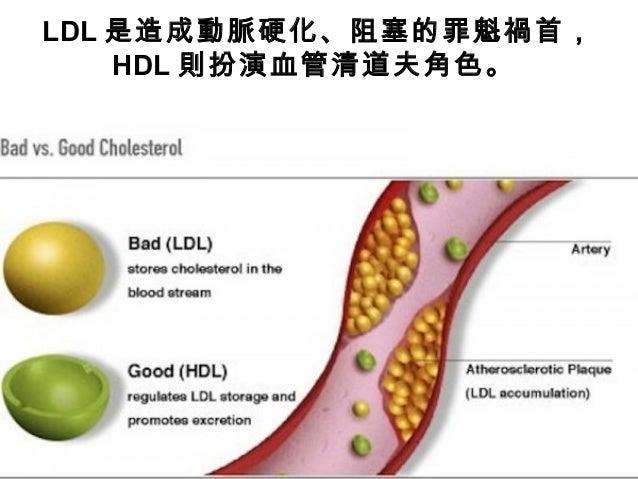 10 Common Cholesterol Mistakes