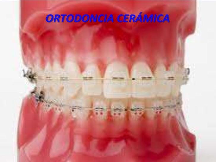 ORTODONCIA CERÁMICA<br />ORTODONCIA CERÁMICA<br />