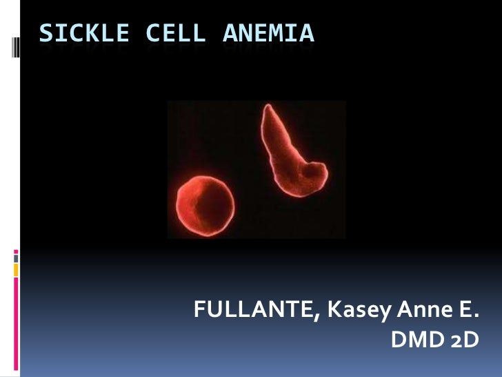 SICKLE CELL ANEMIA          FULLANTE, Kasey Anne E.                         DMD 2D