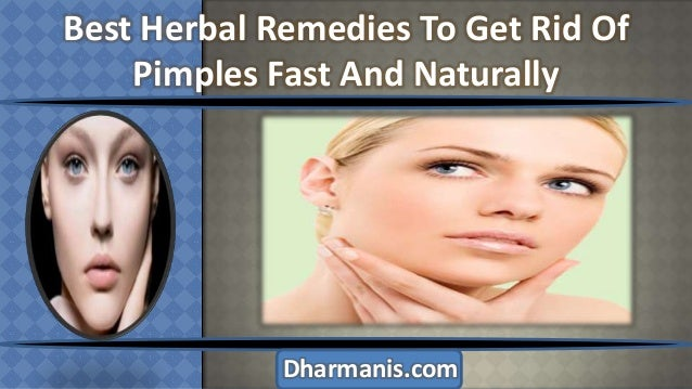 Best Herbal Remedies To Get Rid Of Pimples Fast And Naturally  Dharmanis.com