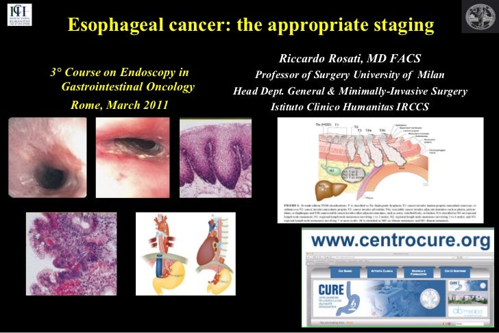 Endoscopy in Gastrointestinal Oncology - Slide 5 - R. Rosati - Esophageal cancer: the appropriate staging
