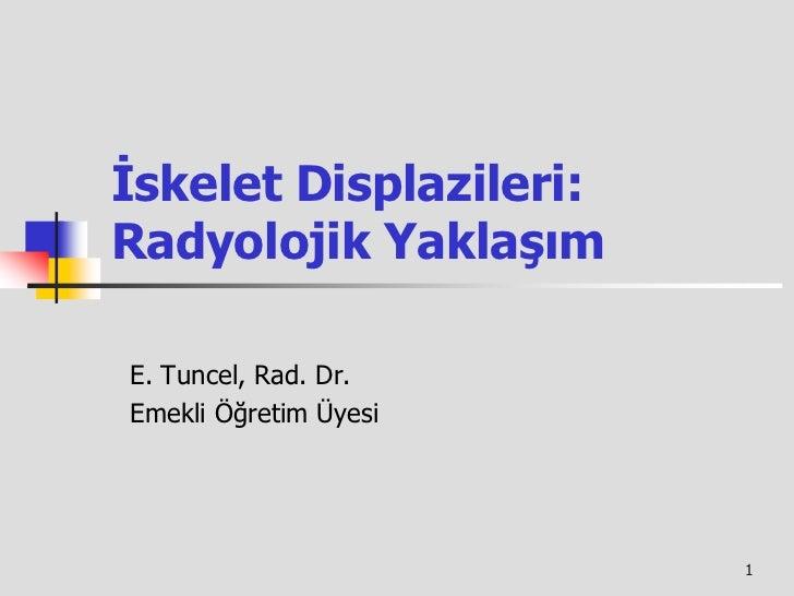 İskelet Displazileri:Radyolojik YaklaşımE. Tuncel, Rad. Dr.Emekli Öğretim Üyesi                        1