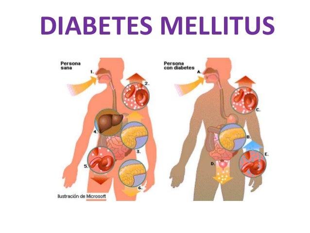 Write my thesis diabetes mellitus
