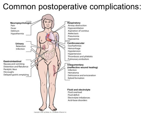 importance of postoperative pain management This article aims to raise nurses' awareness of the importance of patient  education in effective postoperative pain management, and appropriate methods  of.