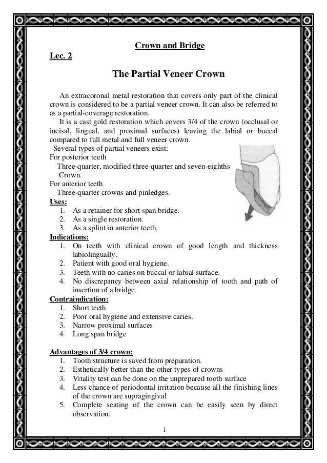 55187683 partial-veneer-crown