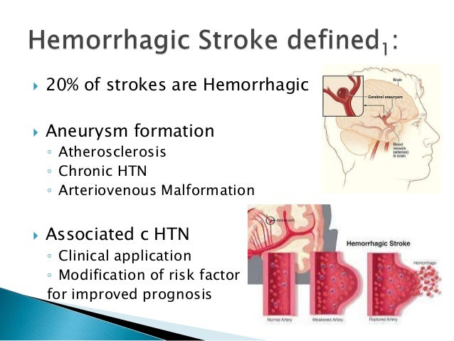 hemorrhagic stroke case studies In the united states, approximately 750,000 strokes occur each year during a stroke, one or more areas of the brain can be damaged depending upon the area aff.
