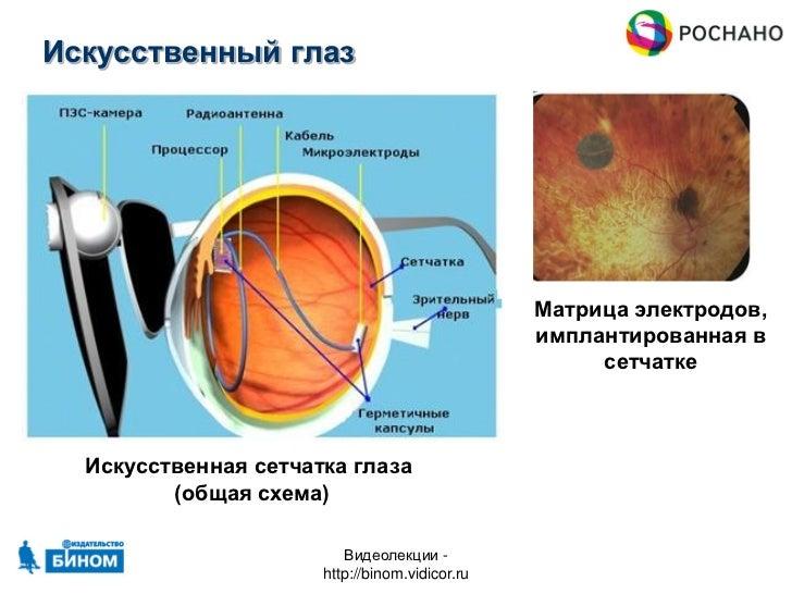 Искусственный глаз Матрица