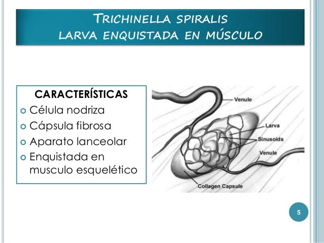trichianella spiralis Trichinosis is a disease caused by eating meat that has not been thoroughly cooked and contains cysts (larvae, or immature worms) of trichinella spiralis.