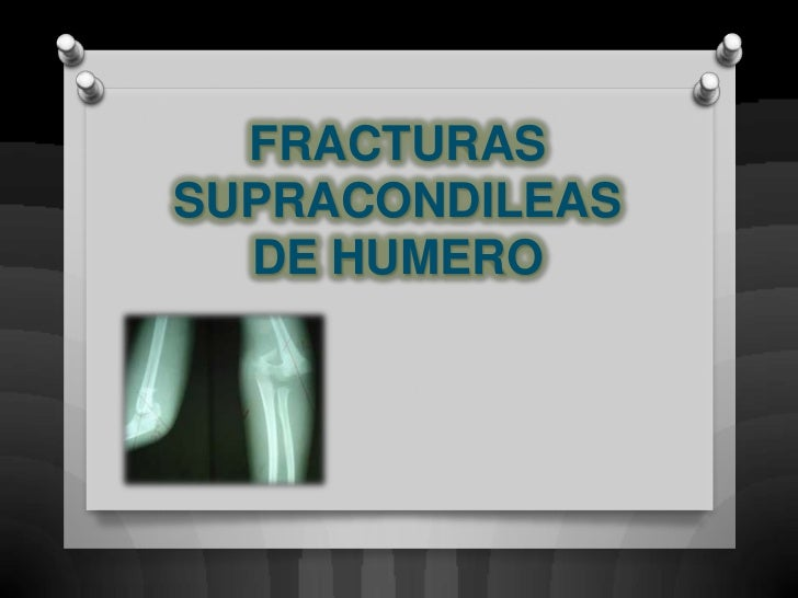 6.fracturas supracondileas de humero modificada iii