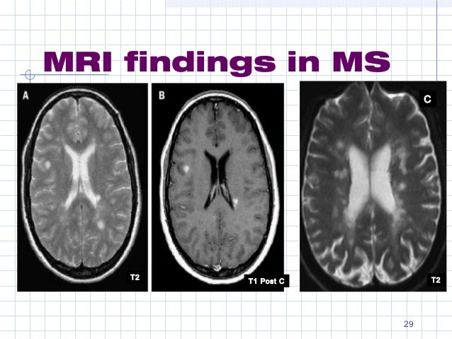 a description of multiple sclerosis Multiple sclerosis (ms) is a serious health condition that gets worse over time in this disease, the body's natural guard against illness (the immune system) damages fatty coverings called.
