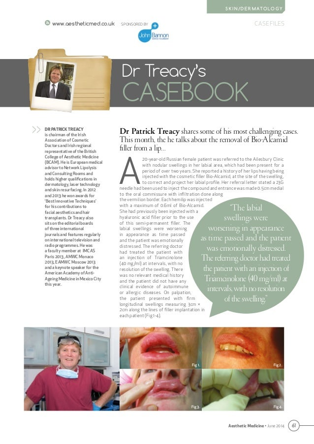 61 CASE FILES Aesthetic Medicine • June 2014 S K I N / D E R M AT O L O G Y www.aestheticmed.co.uk Dr Patrick Treacy share...