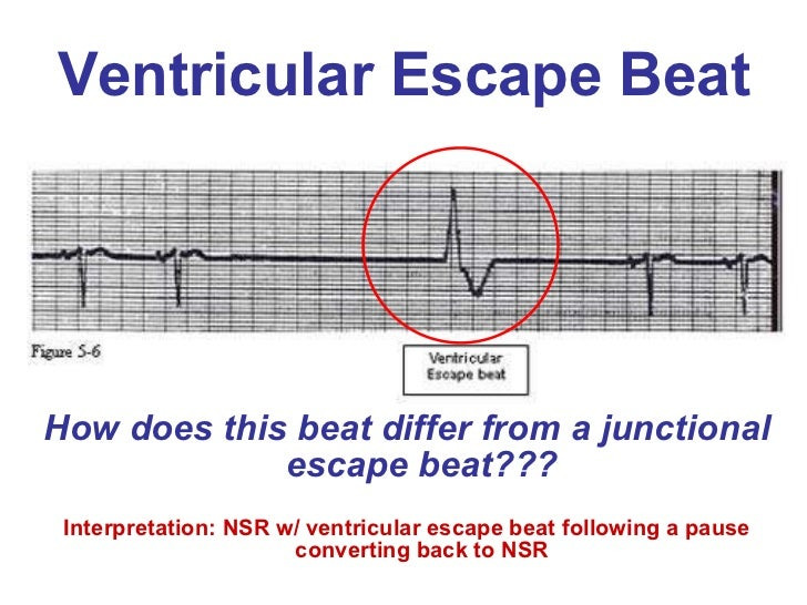 Ventricular escape beat ul li how does this beat differ
