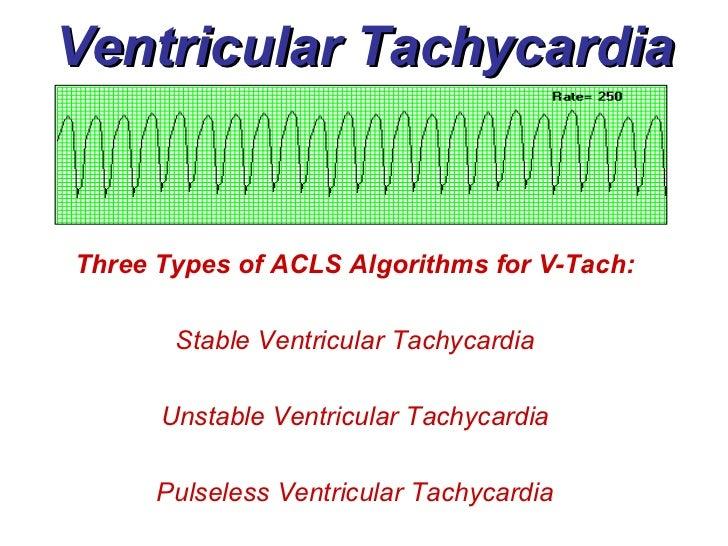 Ventricular Rhythms - BMH/Tele