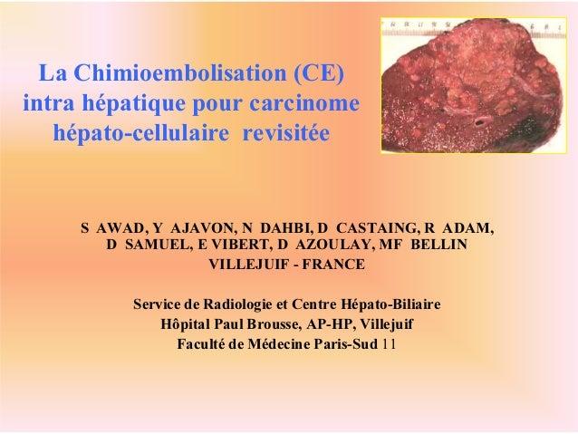 La Chimioembolisation (CE) intra hépatique pour carcinome hépato-cellulaire revisitée S AWAD, Y AJAVON, N DAHBI, D CASTAIN...