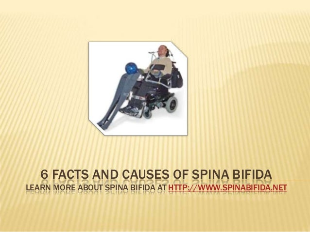 6 facts and causes of Spina Bifida