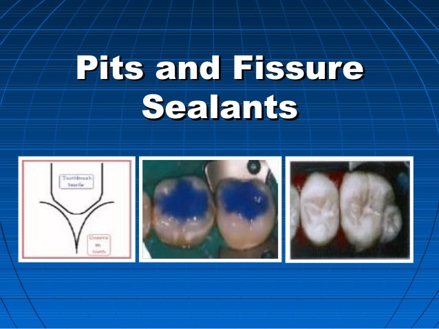 Pits and FissurePits and Fissure SealantsSealants