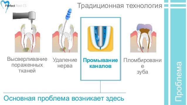 Удаление нерва Промывание
