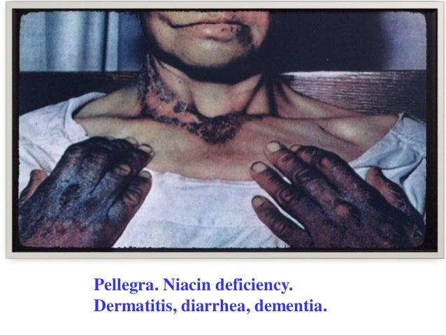 Pellagra Face
