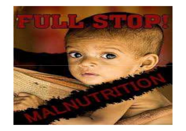Undernutrition People are malnourished ifPeople are malnourished if their diet does not providetheir diet does not provide...