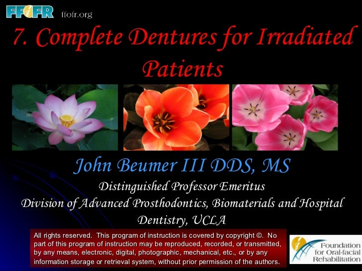 7. Complete Dentures for Irradiated             Patients               John Beumer III DDS, MS                Distinguishe...
