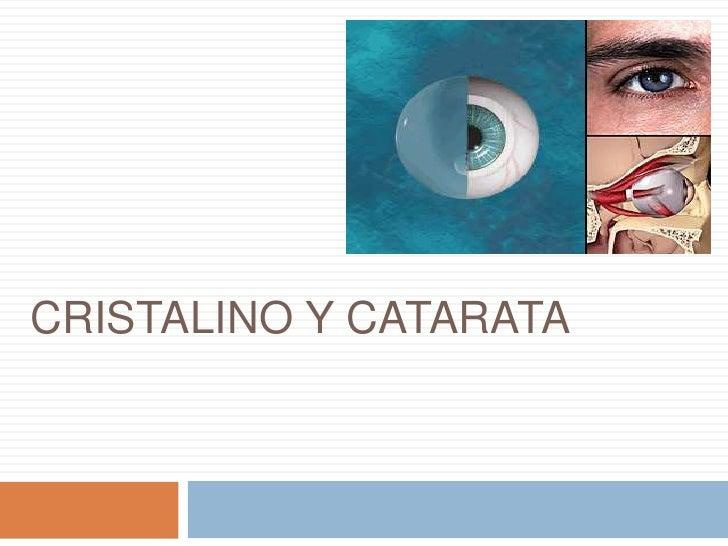 CRISTALINO Y CATARATA