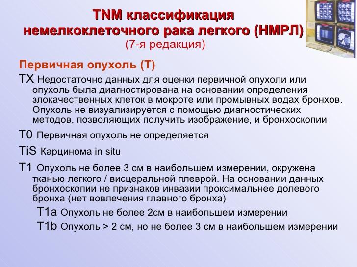 Классификация Tnm фото