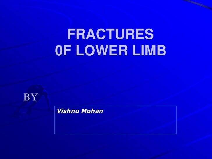 FRACTURES<br />         0F LOWER LIMB  <br />BY<br />Vishnu Mohan<br />
