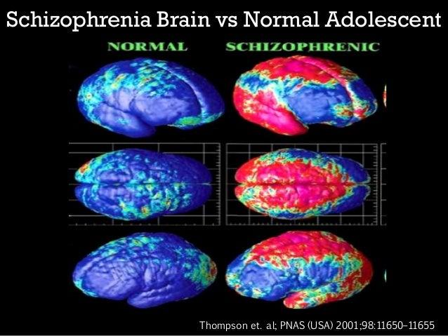 Schizophrenia brain comparison