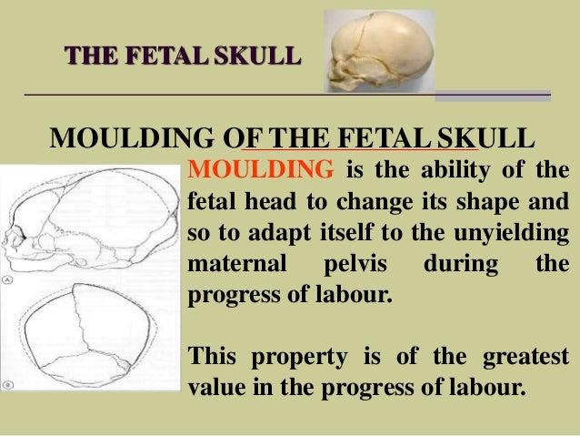 Fetal Skull Moulding The Fetal Skull Moulding of
