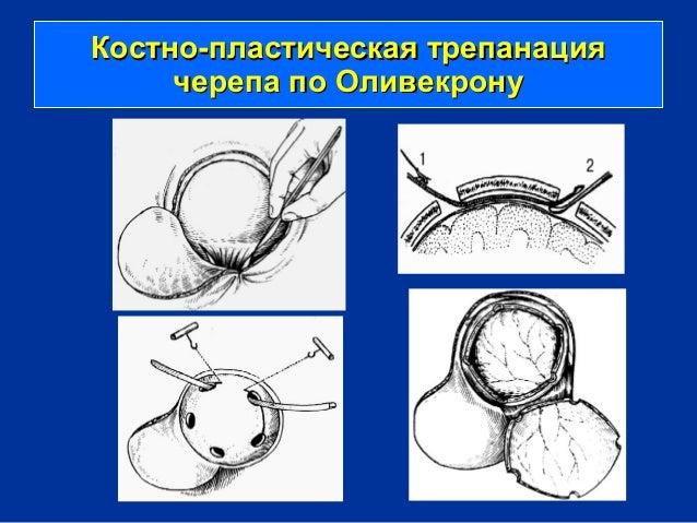 трепанации черепа по