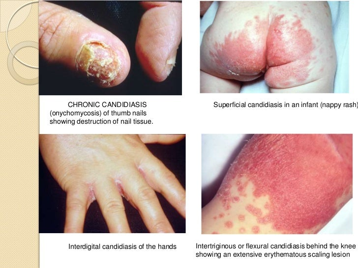 breasts candida symptoms