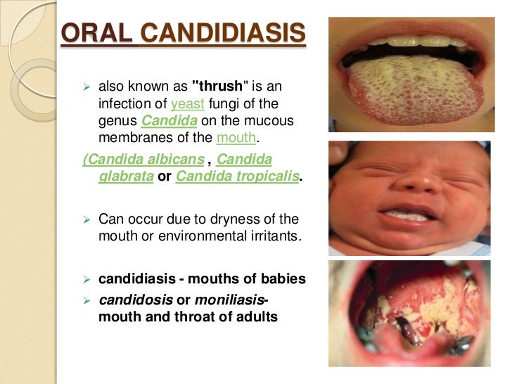 Candida Albicans Oral Treatment Yeast Infection And