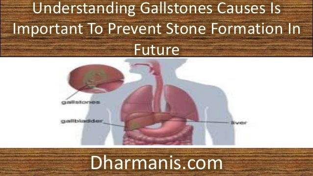 can gallbladder disease cause constipation