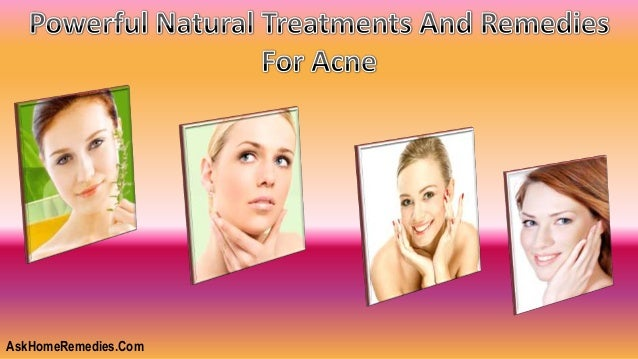 Powerful Natural Treatments And Remedies For Acne