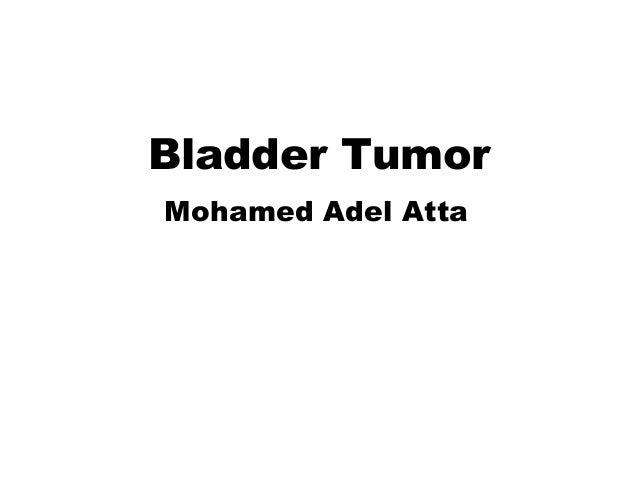 Bladder TumorMohamed Adel Atta