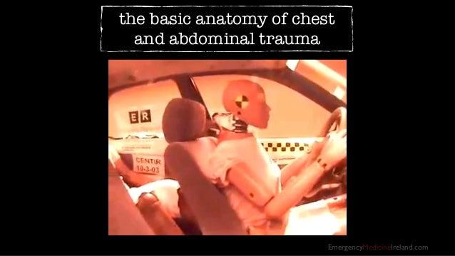 EmergencyMedicineIreland.com the basic anatomy of chest and abdominal trauma