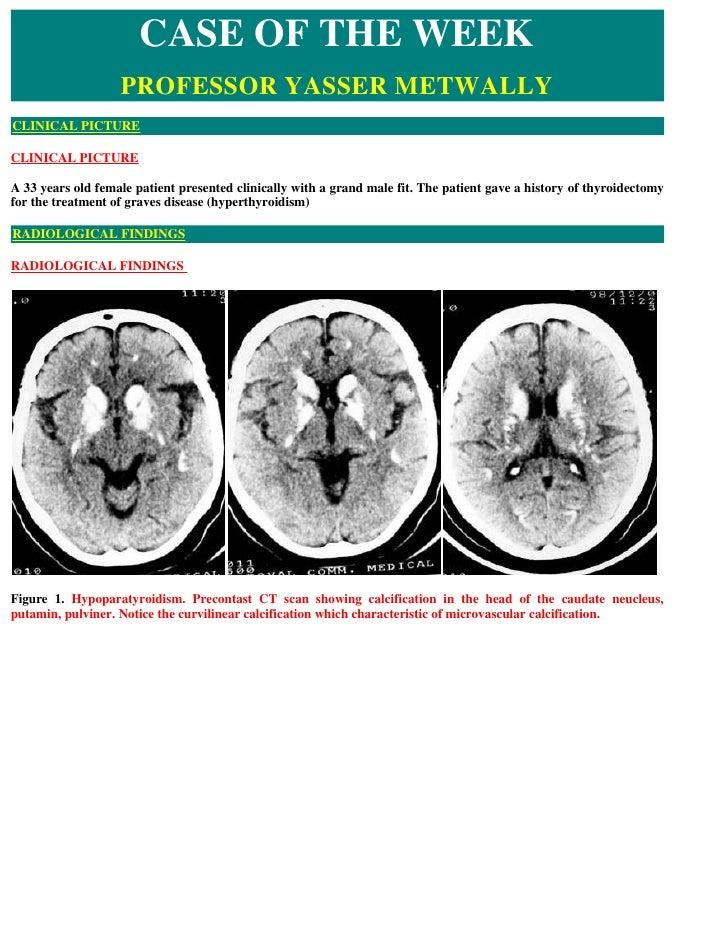 Case record...Hypoparathyroidism