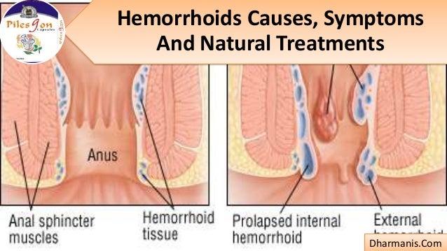 Hemorrhoids Causes, Symptoms And Natural Treatments Dharmanis.Com