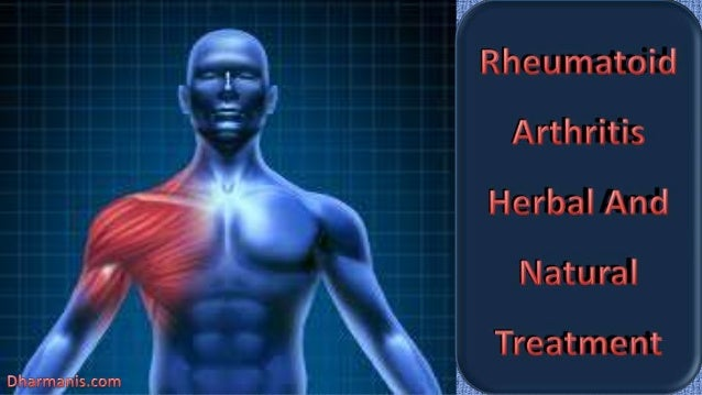 Rheumatoid Arthritis Herbal And Natural Treatment
