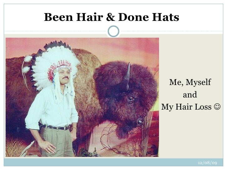 Been Hair & Done Hats Me, Myself  and  My Hair Loss  