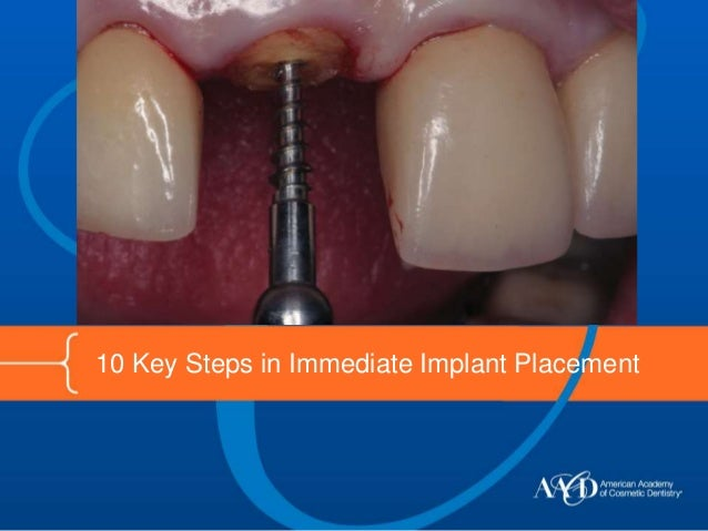 10 Key Steps in Immediate Implant Placement